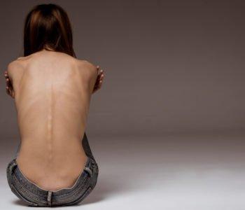 dziewczynka anorektyczka